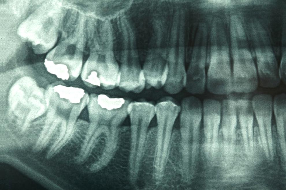 dental x ray for sale