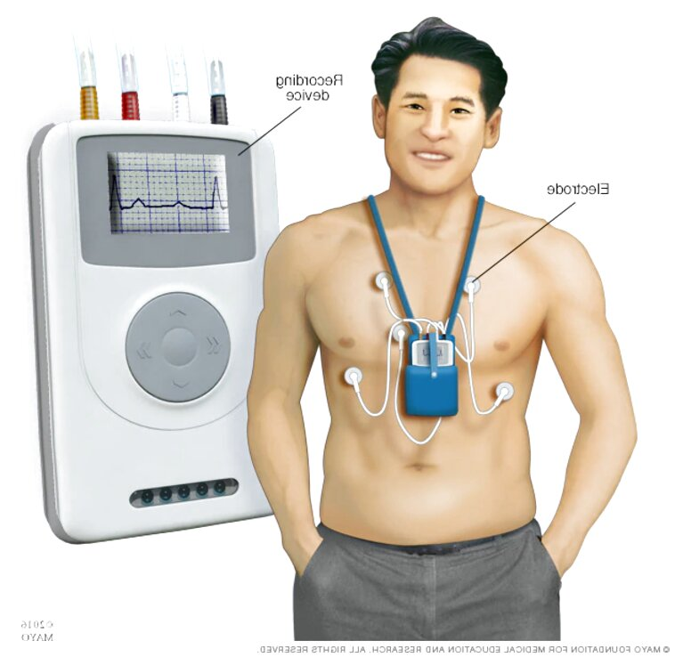 holter monitor for sale